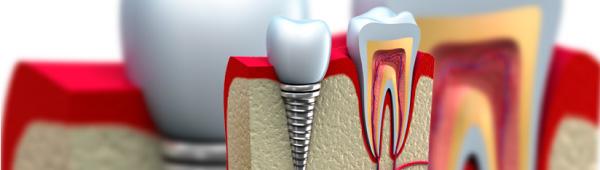 osteointegración de Implantes dentales Clinica Sanz pastor Burgos
