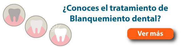 blanqueamiento dental burgos banner