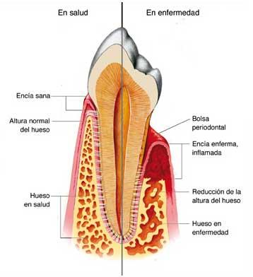 enfermedad-periodontal-encia-sana-versus-encia-enferma