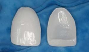 carillas de porcelana a medida del paciente