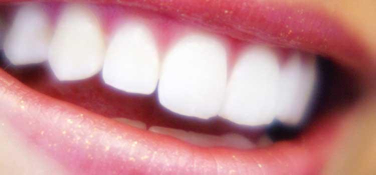 carillas de porcelana dentales burgos