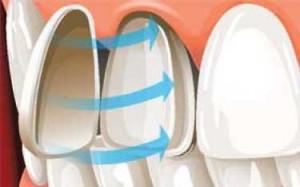 colocacion carillas porcelana sobre diente burgos