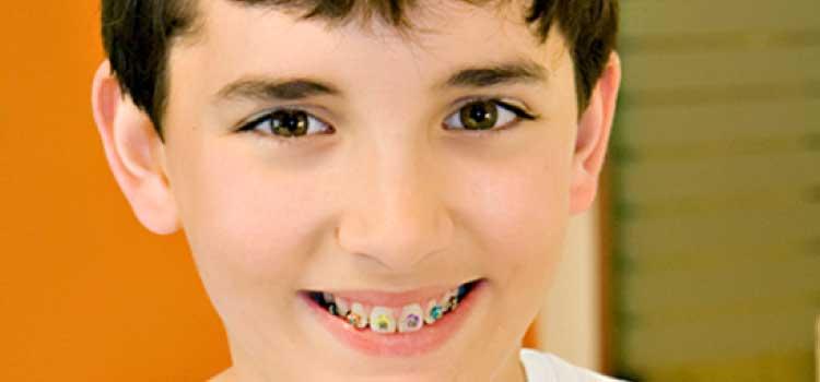 ortodoncia infantil burgos