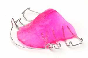 ortodoncia infantil aparato removible burgos