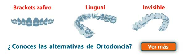 alternativas tratamiento ortodoncia Burgos