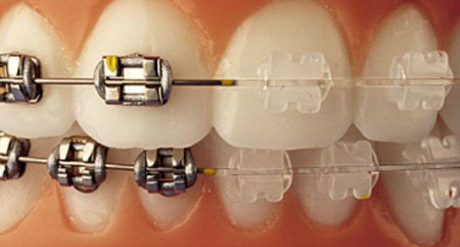 ortodoncia preguntas frecuentes
