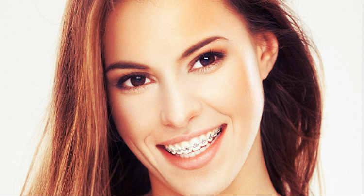 dolor de la ortodoncia en adultos