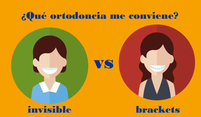 ortodoncia invisible vs brackets