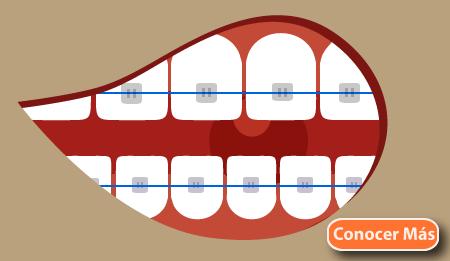 tipos de ortodoncia brackets metalicos tradicional