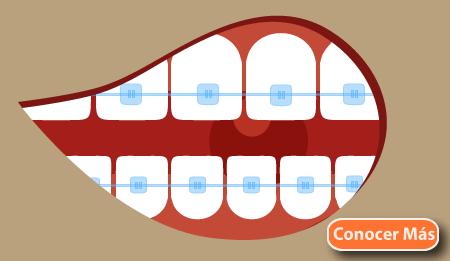 tipos de ortodoncia brakets zafiro tratamiento