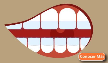 tipos de ortodoncia invisible tratamiento
