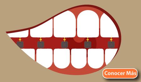 tipos de ortodoncia lingual tratamiento burgos