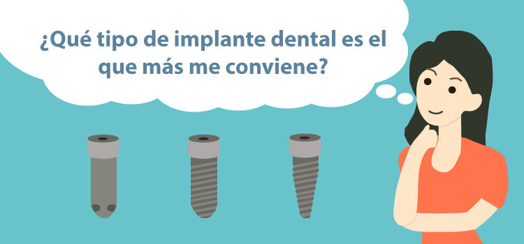 tipos de implantes dentales clinica dental burgos