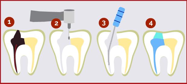 endodoncia burgos proceso pasos