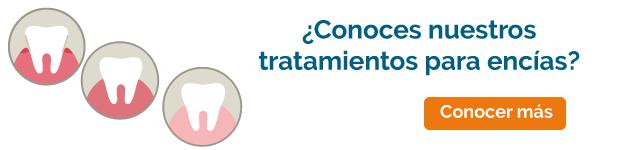 periodoncia en burgos tratamiento banner