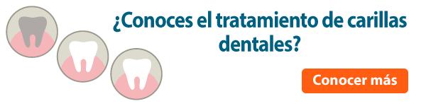 carillas dentales dientes perfectos