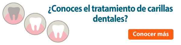 banner-carillas-dentales