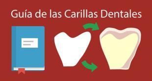 guia completa carillas dentales