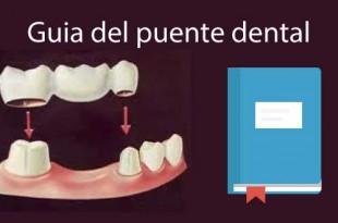puente dental precio guia