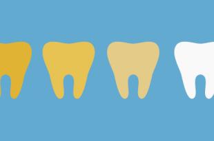 dientes amarillos soluciones causas burgos