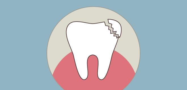dientes rotos solución burgos