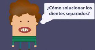 dientes separados carillas ortodoncia burgos