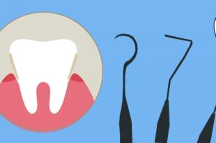 curetaje dental precio burgos