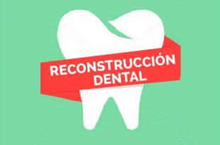 reconstruccion dental burgos