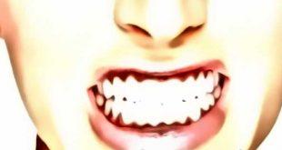 sintomas bruxismo dental