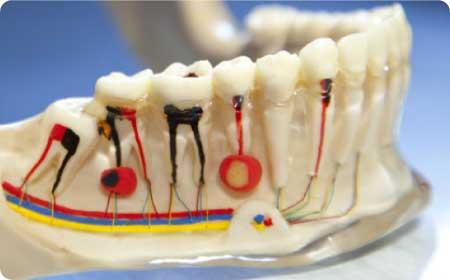 endodoncia en burgos explicacion tratamiento