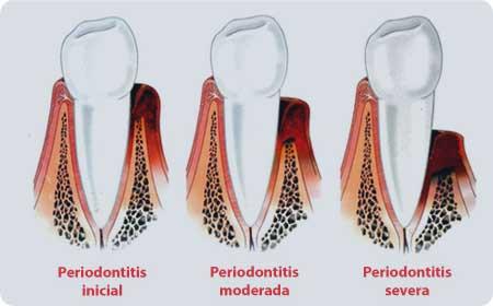 periodoncia en burgos evolición