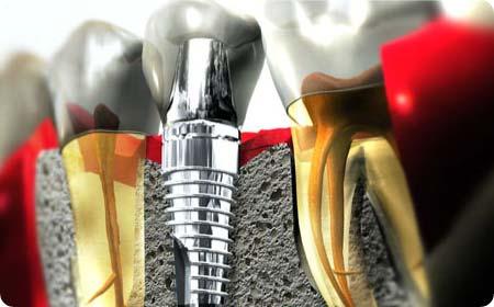 implantes dentales en burgos osteointegrados