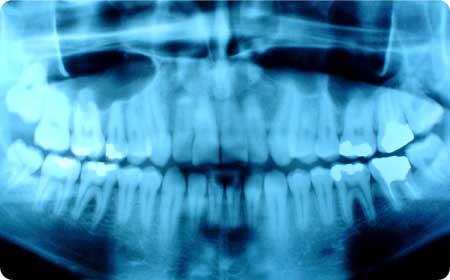 primera visita gratuita dentsita burgos con radiagrafia