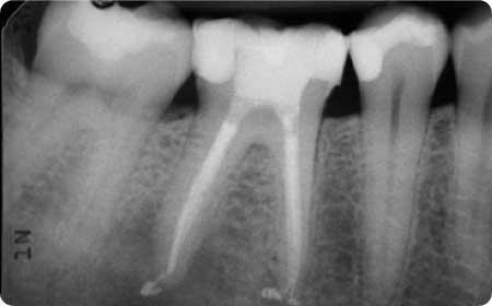 radiagrafia de ortodoncia en burgos