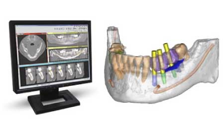 implantes dentales sin cirugía guiados por ordenador burgos