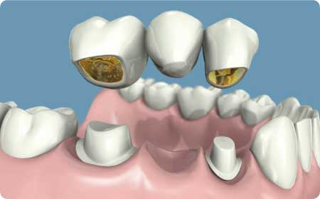 prótesis dentales en Burgoss puentes entales