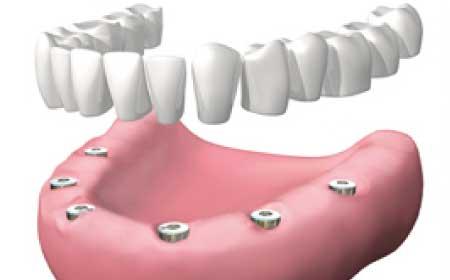 prótesis dentales en Burgos dentadura postiza