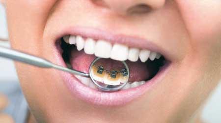 imperceptible ortodoncia lingual en burgos