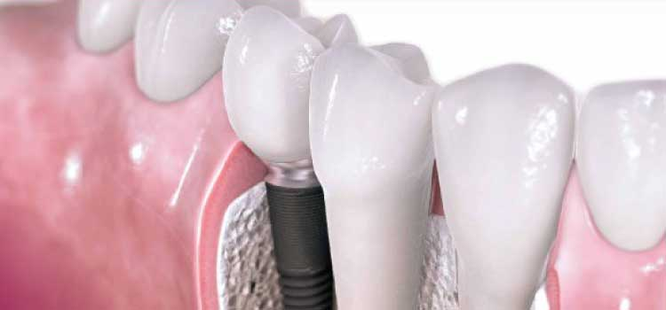 osteointegracion de iplantes dentales
