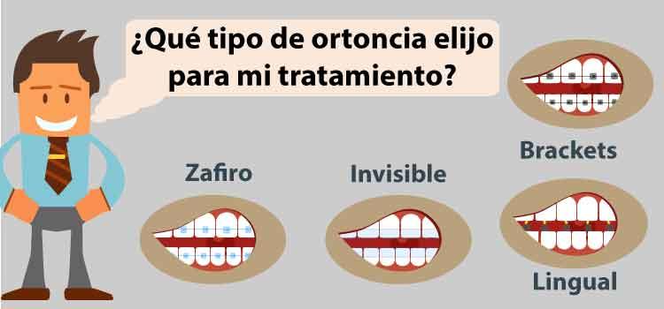 tipos de ortodoncia guia compleat