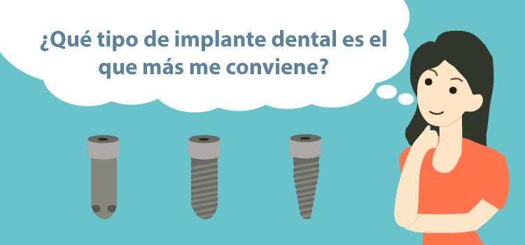 tipos de implantes dentales clinica dental burgos