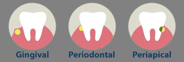 Resultado de imagen de absceso dental