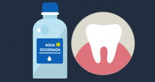 agua oxigenada dientes burgos
