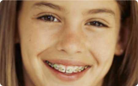 ortodoncia-burgos-adolescentes