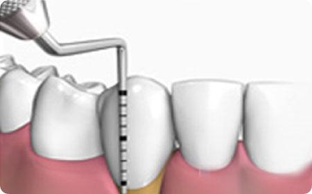 periodoncia en burgos tratamiento encías