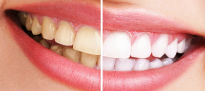 blaqneaumiento dental burgos antes después