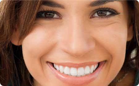 carillas dentales en burgos sonrisa