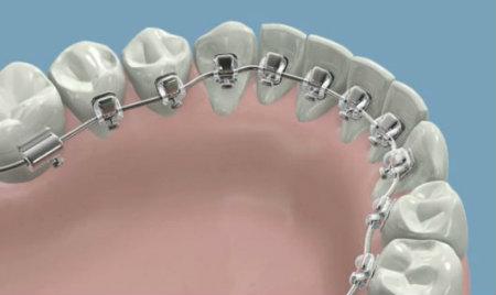 dentadura ortodoncia lingual Burgos