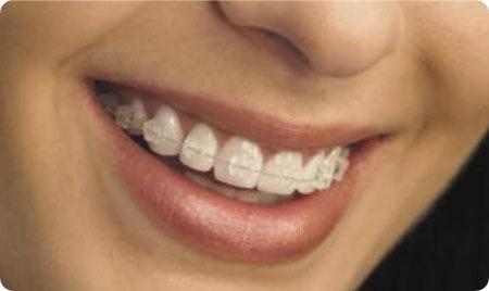 ortodoncia zafiro burgos